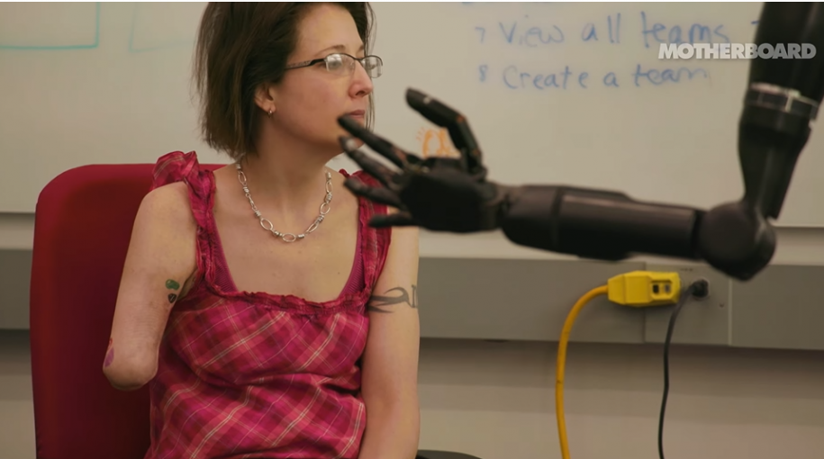 The Mind Controlled Bionic Arm